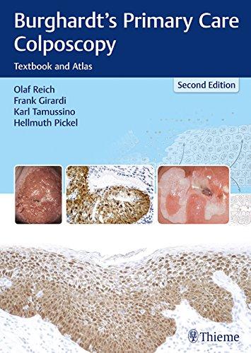 Burghardt's Primary Care Colposcopy: Textbook and Atlas (English Edition)