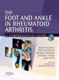 The Foot And Ankle in Rheumatoid Arthritis: A Comprehensive Guide - Philip Helliwell