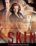 Skin (The X-Files)