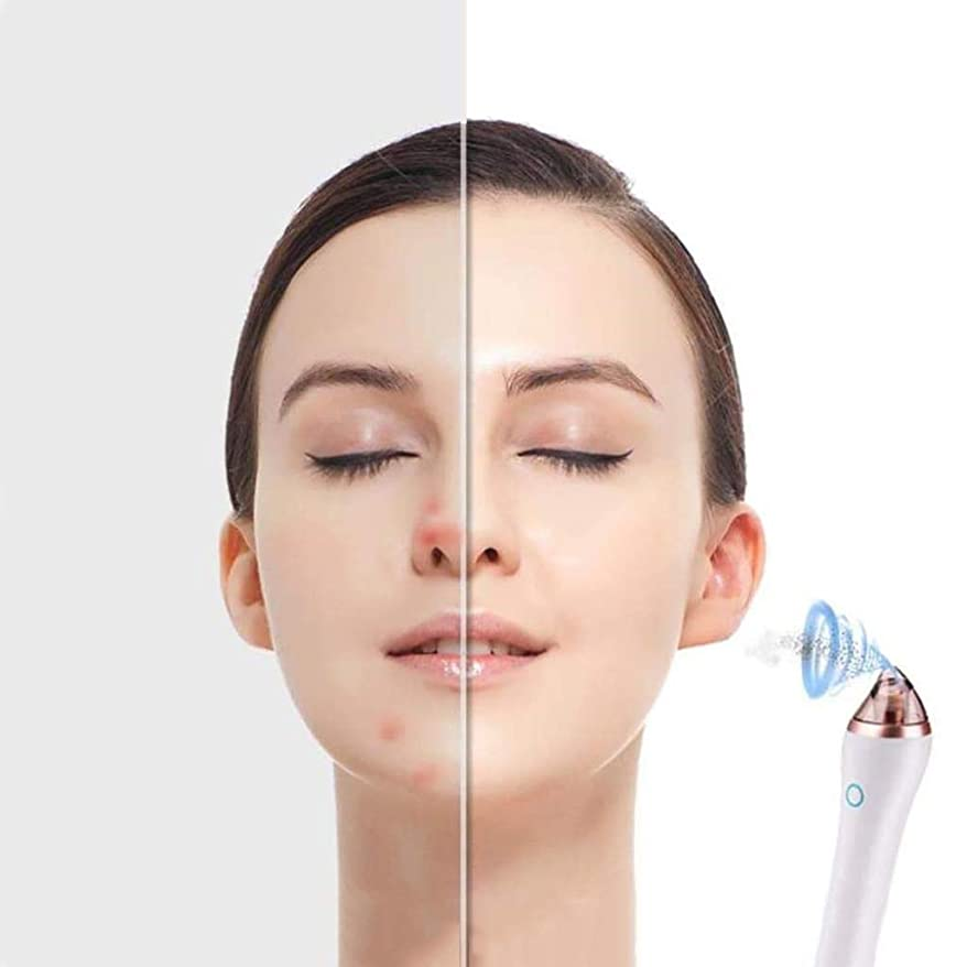 にきび除去剤、毛穴クレンザー掃除機4つの交換可能なヘッド充電式にきび除去キット、電気顔にきび除去剤抽出ツール