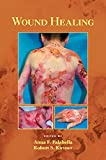 Wound Healing (Basic and Clinical Dermatology Book 34) (English Edition)