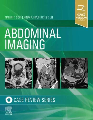 Abdominal Imaging: Case Review Series