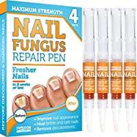 4-Pack Toenail Fungus Treatment Pen with Undecylenic Acid