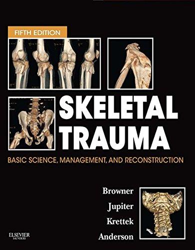 Skeletal Trauma E-Book (Browner, Skeletal Trauma) (English Edition)