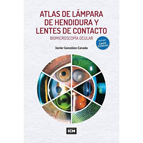 ATLAS DE LÁMPARA DE HENDIDURA Y LENTES DE CONTACTO