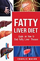 Fatty Liver Diet: Guide on How to End Fatty Liver Disease Fatty Liver Diet Books: Fatty Liver Diet (fatty liver diet for fatty liver Book