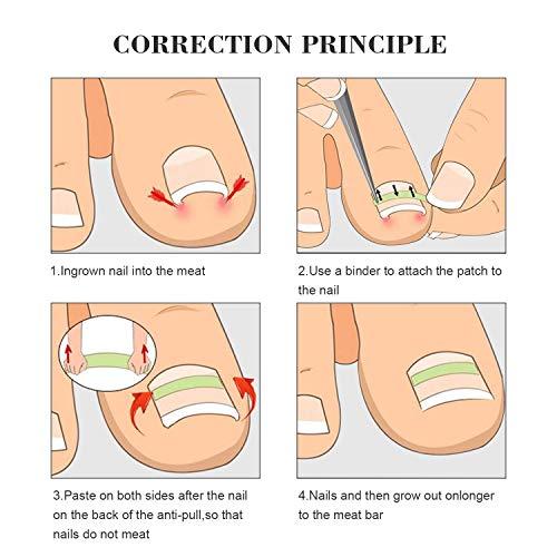 Ingrown Toenail Pedicure Tool 10pcs/bottle Straightening Clip Curved BS Brace Toenails Thick Paronychia Correction Tool Foot