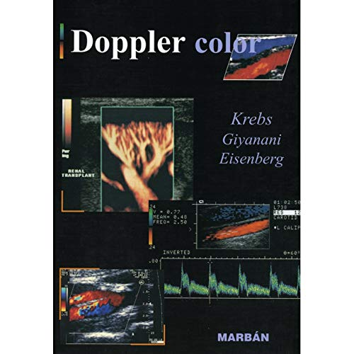 Doppler Color