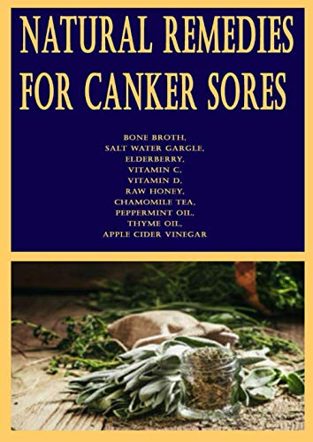 Natural Remedies for Canker Sores: Apply ice, Rinse with baking soda, Aloe vera could help, baking soda mouthwash, Modify your diet, Give probiotic ... licorice, Milk of magnesia can be soothing