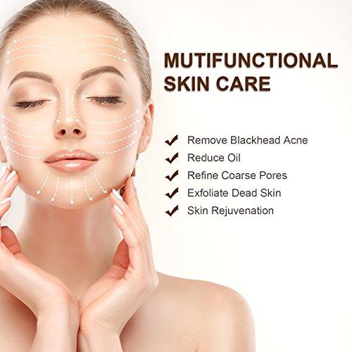 HOPOSO Blackhead Remover Pore Vacuum - Facial Nose Cleaner