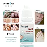ZZEBRA Lanthome Fungal Nail Treatments Foot Care Essence Nail Foot Whitening Toe Nail