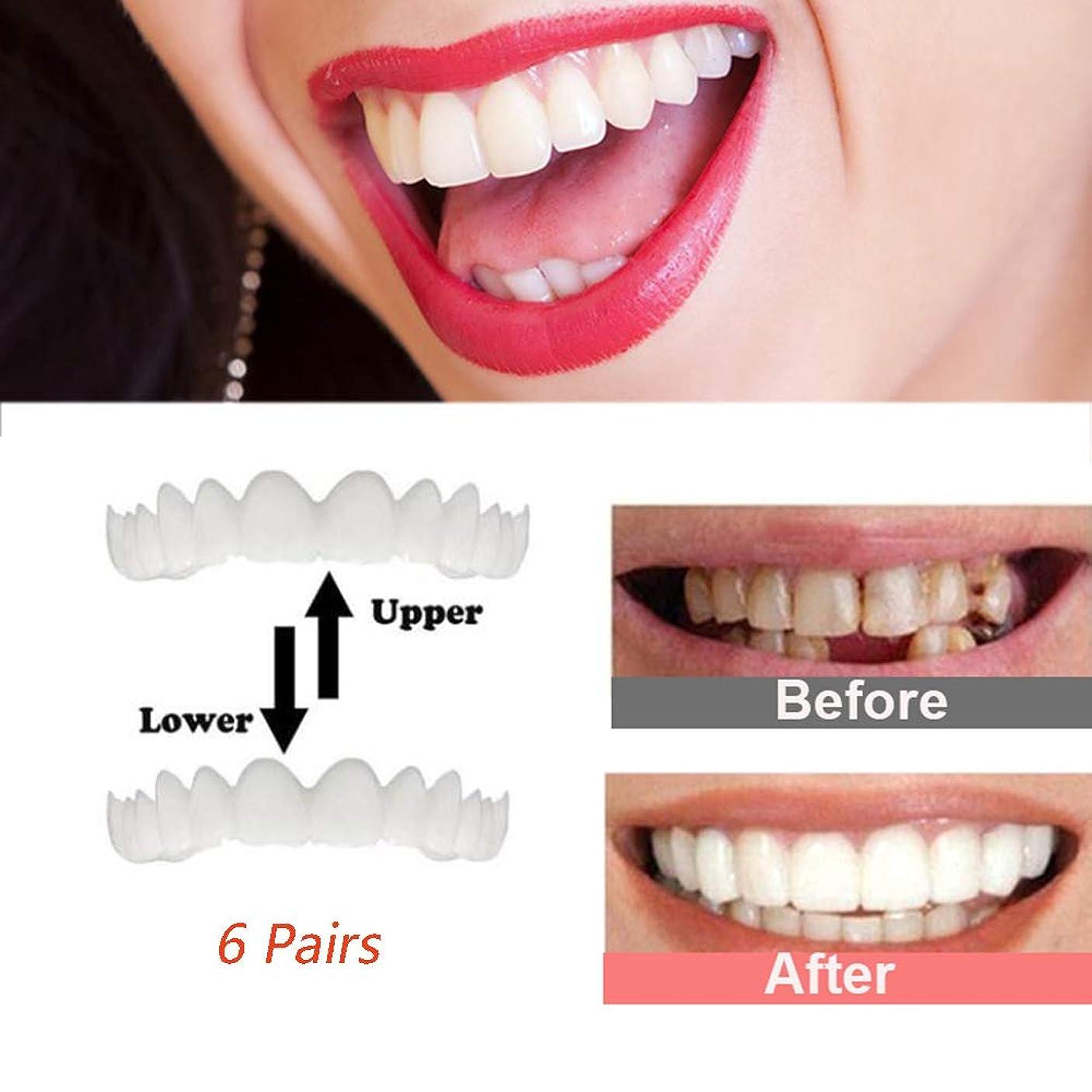 降下シールドベギンインスタント笑顔の歯、6組の一時的な化粧品の歯のベニヤ歯の上部と下部の化粧品のベニヤ変装のためのワンサイズ曲がったステンドグラスの欠けている歯