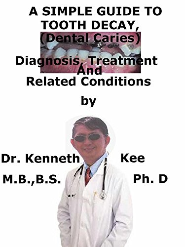 A  Simple  Guide  To  Tooth Decay, (Dental Caries)  Diagnosis, Treatment  And  Related Conditions (A Simple Guide to Medical Conditions) (English Edition)