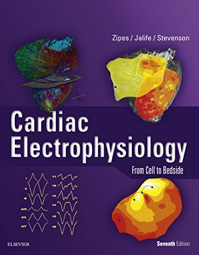 Cardiac Electrophysiology: From Cell to Bedside E-Book (English Edition)