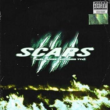 Scars (feat. Tyus)