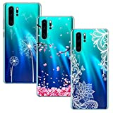 Yoowei 3-PACK for Huawei P30 Pro Case, Ultra Thin Crystal
