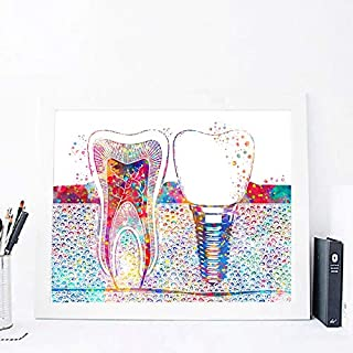 liwendi Implant Printing Dentist Gift Dental Clinic Wall Decoration Hygienist Office Art Medicine Canvas Painting Tooth Watercolor Poster 42 60Cm
