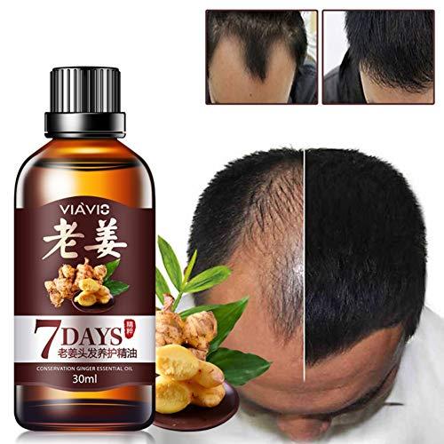 Sérum de croissance des cheveux Yiitay Traitement anti-perte de cheveux à l'huile essentielle améliorée de gingembre Nourrissant Réparation Croissance des cheveux Traitement de perte de cheveux