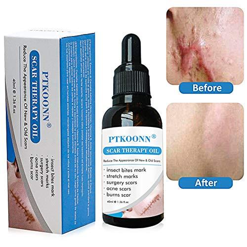 Narben oil,Narben Behandlung,Narben Serum,Scar oil,Reduzieren alten und neuen Narben und Reparieren Haut,Überall am Körper einsetzbar,Beste Behandlung für Akne,Narben,Flecken,feine Linien und Falten
