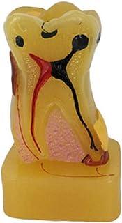FGDSA Modelo Educativo Modelo De Cuidado Dental Modelo Anatómico De Dientes Patología Integral Modelo De Diente Material D...
