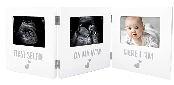 Paishanas Triple Ultrasound Picture Frame