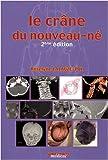 Le crâne du nouveau-né - Des contraintes foetales et leurs enjeux neurologiques aux répercussions chez l'adulte