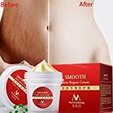 LingStar Skin Repair Cream Smooth Smooth Herb Gel for Stretch Marks Scar Removal Skin Repair Body Cream