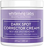 Dark Spot Corrector Face Body Cream. Spot Fade Remover Diminisher for Men and Women 4 OZ