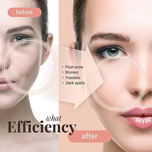 Whitening Cream Skin Lightening Cream - Intimate Area Face Body Skin Tone Dark Bright Spot Correction Freckle Armpit Underarm Knees Effective Brightening Bleaching Nourishing Effect with Collagen