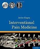 Interventional Pain Medicine - Anita Gupta