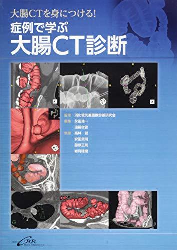症例で学ぶ大腸CT診断の詳細を見る