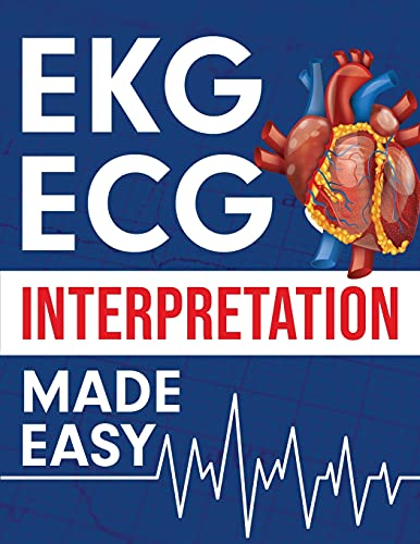 EKG | ECG Interpretation Made Easy: An Illustrated Study Guide For Students To Easily Learn How To R