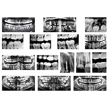 Roylco R-59269 Dental X-Rays Set of 17