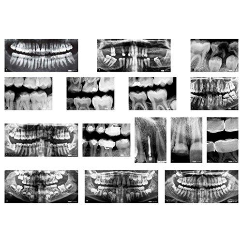 Roylco R-59269 Dental X-Rays, Set of 17