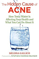 Photo of the book cover of The Hidden Cause of Acne