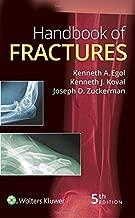Best handbook of fractures Reviews