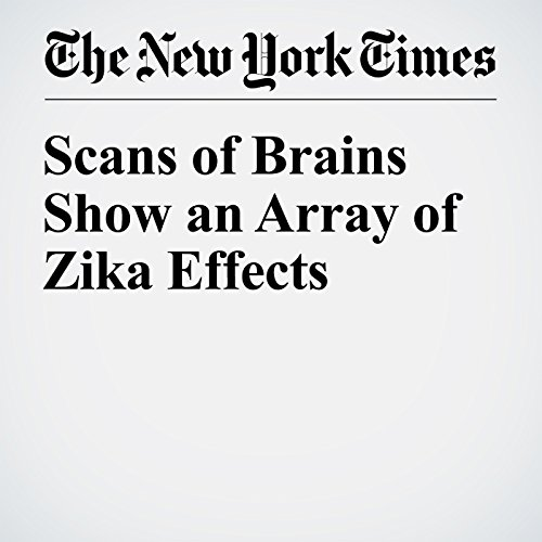 Scans of Brains Show an Array of Zika Effects audiobook cover art