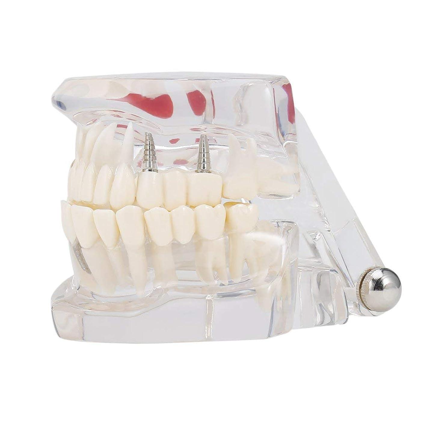 スラッシュその他かみそりプロの取り替え可能な偽の歯の歯の病気Moldel歯科インプラント修復ディスプレイクリニック病院教育用