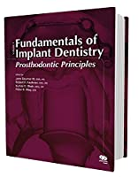 Fundamentals of Implant Dentistry: Prosthodontic Principles 086715585X Book Cover