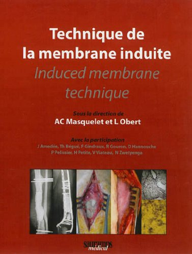 Technique de la membrane induite