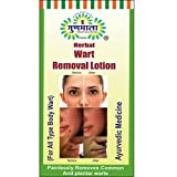 Wart Removal Products Review and Comparison