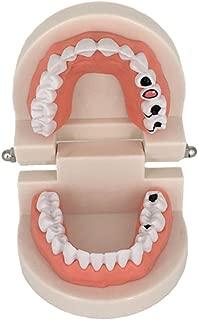Decay Tooth Model, YOUYA Dental Caries Standard Teeth Teaching Model Study Tool Adult Disease Standard Typodont Demonstration Teeth Model for Kids Oral Care Teaching
