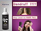 Best Coal Tar Shampoos - Karissa K-TAR Coal Tar shampoo - Anti dandruff Review