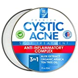 Best Acne Treatment For Faces - Cystic Acne Spot Treatment for Face & Body Review