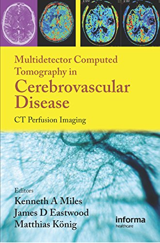 Multidetector Computed Tomography in Cerebrovascular Disease: CT Perfusion Imaging (English Edition)
