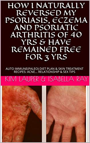 autoimmune psoriasis eczema