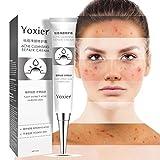 SUNSENT Acne Repair Cream,Acne Treatment Cream,Remove Pimples Shrinking Pore Face Skin Repair Cream