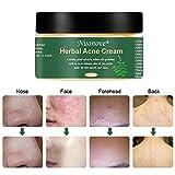 Zoom IMG-1 crema acne viso anti cicatrici