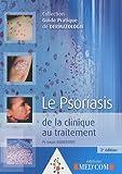 Le psoriasis - De la clinique au traitement