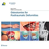 Osteotomies for Posttraumatic Deformities (AO-Publishing) (English Edition)